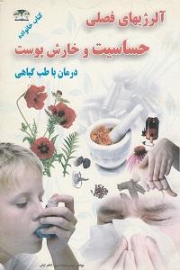 آلرژی فصلس حساسیت